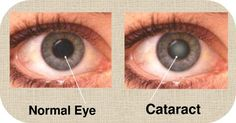 Cataract eye