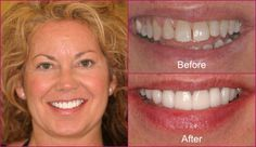 Dental veneers offer a quick and simple fix for some of your not-so-perfect-teeth. Veneers are very thin pieces of durable, tooth shaped porcelain that are custom made to lay on the front of your teeth.
