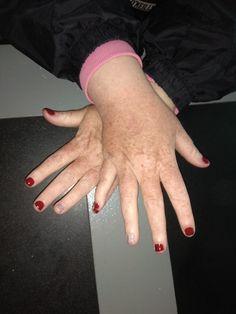 #Rednails #Manicure #Holographicnails #Glitter #Holographic #Nails 💅 Holographic Nails, Red Nails, Manicure, Glitter, Red Toenails, Nail Bar, Red Nail, Nails, Polish