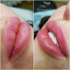 Body Makeup, Kiss Makeup, Eye Makeup, Facial Fillers, Lip Fillers, Natural Pink Lips, Natural Lip Plumper, Lip Permanent Makeup, Botox Lips