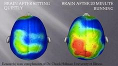 Brain after sitting quietly. Brain after 20 minute running.