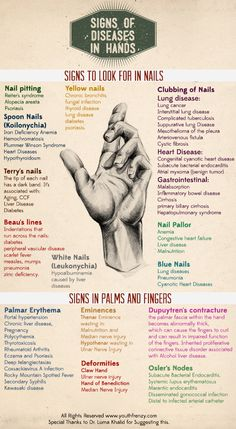 Signs of diseases in hands, nails and palms.