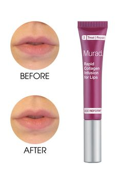 An ELLE.com editor selfie tests the 8 biggest lip plumpers on the market. See how Murad Rapid Collagen Infusion for Lips stacks up.