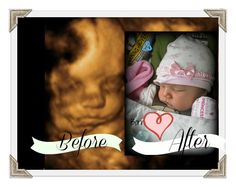 4d ultrasound of baby and baby in her newborn photo! Bella Baby 4d will give you that peek inside your womb. Elective 4d ultrasounds and gender scans. Best face pictures will be between 28-32 weeks. Book now! www.bellababy4d.com #4dultrasound #4dbeforeandafter #seemybabysface