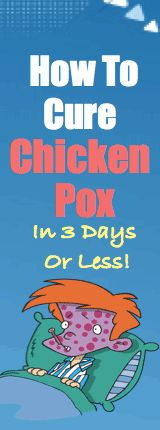 How To Treat Chicken Pox Blisters, Rash And Spots | How To Cure Chicken Pox - (just in case)