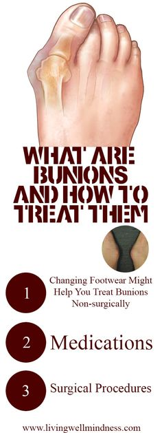 Are you one of the many people who have bunions? Have you ever wondered why and how this painful condition develops?