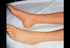 See a picture of and learn about Rocky Mountain spotted fever, a tick-borne bacterial infection, in the eMedicineHealth Image Collection Gallery. Rashes Remedies, Foot Remedies, Tick Bite Symptoms, Leg Rash, Steven Johnson Syndrome, Rocky Mountain Spotted Fever, Leg Pictures