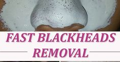 Blackheads, especially the ones that appear on your nose are one of the most unaesthetic skin problems. You have two options if you wa...