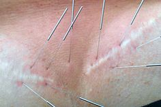 Acupuncture/Cupping for Treating Scar Tissue
