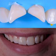 Direct composite to restore smile after trauma #minimalinvasivedentistry #dentist #dentista #dentistry #dentiste #odonto #odontology #odontologia #smile #smiledesign #smilemakeover #cosmeticdentist #cosmeticdentistry #whitefilling #cosmedent #composite #rubberdam #rubberdamology #teeth #tooth #londondentist #biomimetic #macro #canon by drth.co.uk Our Cosmetic Dentistry Page: http://www.myimagedental.com/services/cosmetic-dentistry/ Google My Business…