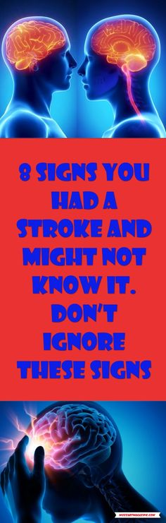8 SIGNS YOU HAD A STROKE AND MIGHT NOT KNOW IT. DON'T IGNORE THESE SIGNS