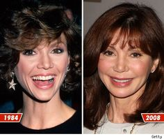 The producer and writer, Victoria Principal, had undergone a surgical procedure in recent years. The media sources report that it was a facelift surgery which
