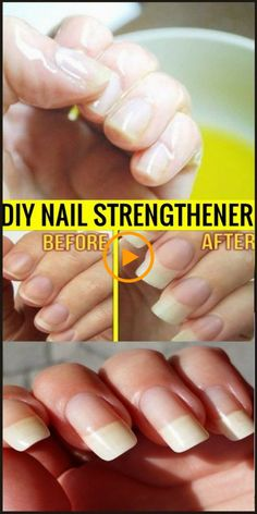 DIY NAIL STRENGTHENER #Nails – Skin Name #nailstrengthener #nails #nailtreatme... #fakenails #fakenailsdesign #diyfakenails #PostPregnancyHairLoss #ShampooToPreventHairLoss #WhatToDoForHairLoss #OilForHairLoss