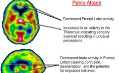 "Patients undergoing a panic attack (PA) or a hyperventilation attack (HVA) are sometimes admitted to emergency departments (EDs). Reduced serotonin level is known as one of the causes of PA and HVA. Serotonin is synthesized from tryptophan. For the synthesis of serotonin, vitamin B6 (Vit B6) and iron play important roles as cofactors."" On the …"