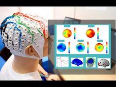 Que es el Mapeo Cerebral- HogarTv por Juan Gonzalo Angel