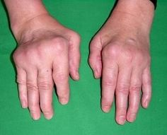 This what I'm scared of! and I want more People who have arthritis also to know, That if You teat it now, your Hands may not become like that!