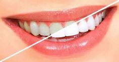 """Não perca essa! """"Oil pulling"""" utiliza apenas 1 ingrediente e deixa os dentes brancos em pouco tempo"""