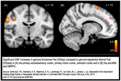 Brain activation differences between alter identities in Dissociative Identity Disorder - study also shows brain changes in DID cannot be mimicked/created by suggestion. Brain images show brain differences between DID and controls, and between EP &ANP identities - more info on http://www.dissociative-identity-disorder.net/wiki/Lab_tests Share alike image - http://www.dissociative-identity-disorder.net/w/images/Schlumphf2014.png -  (feel free to copy & adapt with backlink)