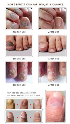 Fungal oil helps restore the healthy appearance of discolored or damaged nails caused by factors such as toenail fungus (onychomycosis) or psoriasis. Yellow Nails, White Nails, Fungal Nail Treatment, Damaged Nails, New Hair Trends, Nail Growth, Manicure Y Pedicure, Pedicure Tips, Pedicures