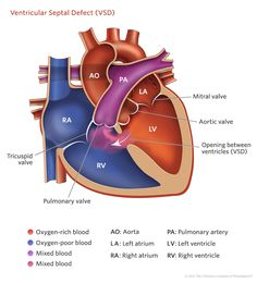 """A ventricular septal defect (VSD) — or """"hole in the heart"""" — is an opening between the heart's lower chambers. Learn how fetal VSDs are treated. Nursing Labs, Icu Nursing, Pediatric Nursing, Cardiac Assessment, Ventricular Septal Defect, Chd Awareness, Congenital Heart Defect, Nursing School Notes, Respiratory Therapy"""
