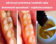 Jak leczyć próchnicę i wybielić zęby domowymi sposobami – najskuteczniejsza metoda