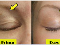 5 natural and effective remedies to lift the eyelids falls .- 5 rimedi naturali ed efficaci per sollevare le palpebre cadenti 5 natural and effective remedies to lift drooping eyelids - Beauty Care, Diy Beauty, Beauty Hacks, Face Care, Skin Care, Drooping Eyelids, Face Yoga, Care Logo, Natural Health