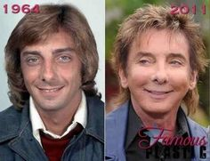 Barry Manilow Plastic Surgery Before After Always interesting what you can find when you type in plastic surgery and other related terms
