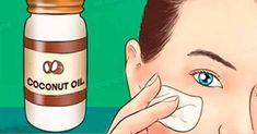 El aceite de coco es totalmente conocido por sus diversos beneficios, normalmente las redes y las publicidades se ven bombardeadas de anuncios de productos