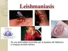 Recupera Tu Bienestar : Conoce sobre la Leishmaniasis