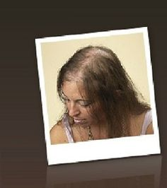 Methotrexate Hair Loss Common
