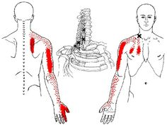 scalene muscles (scaleni) trigger points and referred pain patterns to arm, shoulder, and scapula