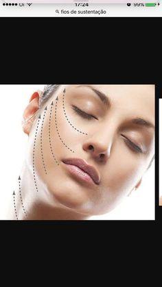 Se você está com a pele flácida ,perdeu o contorno facial, flacidez no pescoço e já tentou inúmeros tratamentos sem resultados e por este motivo está com autoestima baixa.Você não vai mais precisar se preocupar com isto ! Veja como o tratamento funciona : 👉http://espacosauderio.com.br/como-eliminar-papada-saiba-mais-sobre-fios-de-sustentacao/  #flacidez #gorduralocalizada #espacosauderio #beleza #saúde #tecnologiasdeponta #riodejaneiro #rj #fiosliftings #silhouettesoft  #fiosdesustentação