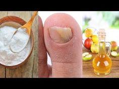 Aceto Di mele e Bicarbonato Contro L'onicomicosi - YouTube