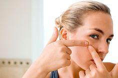 Nuestra piel es un reflejo de lo que pasa dentro de nuestro cuerpo y una espinilla puede mandarnos un mensaje muy claro sobre nuestra salud y nuestros hábitos de higiene y alimentación.