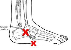 peroneal tendonitis | Run Lily Run: Peroneal Tendon Injuries