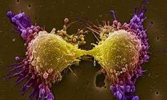 Micomedicina: Carcinoma prostatico, non sempre serve il bisturi