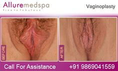 Fly to India for Vaginal Tightening Surgery (also known as Vaginoplasty, Vaginal Surgery, Vaginaplasty) at Less Price/Cost Compare to Gaborone, Francistown, , Botswana at Leading Cosmetic Surgery Center in Mumbai, India- Alluremedspa by Best Vaginal Tightening Surgeon/Doctor Dr. Milan Doshi. It is Safe and Secure Medical Procedure that serves to 'Tighten Up' Vaginal Muscles, Which can loosen up with Aging and Childbirth.