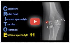 Radiology Signs • Which elbow ossification center mnemonic do you...