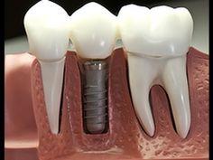 Implantes Terrassa - Dr Sanchez Moya - YouTube