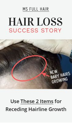 How to reverse receding hairline at temples - Use this natural treatment
