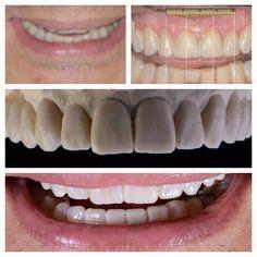 (Mock-Up) O test drive do sorriso permite ao paciente e ao dentistavisualizar a estética facial do seu tratamentoantes do processo curativo!! - Reabilitação Oral Guiada pelo Digital Smile Design - Previsibilade Estética e Função - #dsd #dsdresidency #odontologiaemocional #facetasdeporcelana #veneers #primeodontologia #odontologiadigital #bleach by primeodontologiabh Our Dental Veneers Page: http://www.lagunavistadental.com/services/cosmetic-dentistry/veneers/ Other Cosmetic Dentistry…