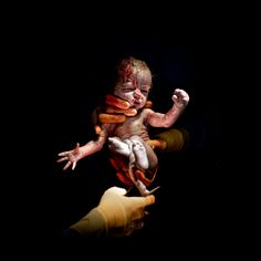 From Womb to world. Babies photographed just seconds after birth. Must feel like jumping into an ice-cold pool.