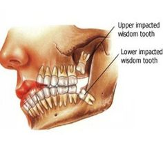 Recover after Wisdom Teeth Surgery | Remember this, Things to ...