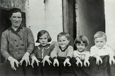 "Many people who have ectrodactyly had displayed themselves in side shows as ""Lobster Man, Lobster Boy or Lobster Family"". Description from pinterest.com. I searched for this on bing.com/images"
