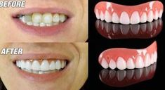 Our Instant Smile Veneers Are OFF For A Limited Time Only! It can be hard to get that perfect smile with pearly white teeth especially if you love sweet Color Correcting Concealer, Classic Updo, Beauty Secrets, Beauty Ideas, Applying False Eyelashes, Smile Teeth, Best Skin Care Routine, Body Cells, Perfect Smile