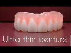 Up close with Russell Klein ultra thins dentures and important info on Russell Klein Dentures. Toothpaste Pimple, Teeth Whitening, Perfect Teeth, Perfect Smile, Affordable Dentures, Diamond Teeth, Veneers Teeth, Teeth Braces, Dental Crowns