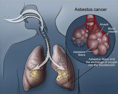 Asbestos Lung Cancer Facts, Causes and Treatment  #asbestosis #banasbestos
