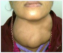 Whether you need to get thyroid treatment in Kolkata or want to get ENT treatment, visit Dr. Sanyal, a renowned ENT surgeon in Kolkata. Visit: http://www.entheadneck.co/availability.html