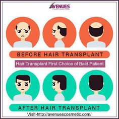 At the Avenues clinic, Ahmedabad hair transplant is performed by the authentic and trained doctors providing patients positive results as per their expectations. Thus, patients never feel disappointed after the surgery. Visit -http://avenuescosmetic.com/