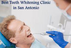 Best Teeth Whitening Clinic San Antonio  #Bestorthodontictreatment #BestorthodontictreatmentinSanAntonio #dentalimplants #brightsmile #dentalClinic #CosmeticDentalCare #Gumdiseasecare #Gumdisease